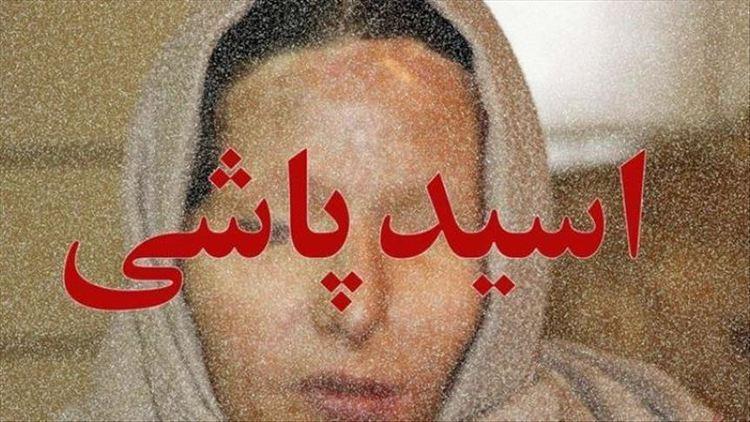 مرد سنگدل کرجی همسر و دختر خود را با اسید سوزاند